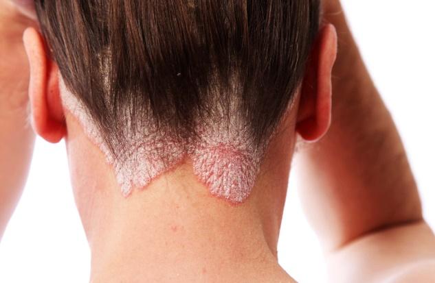 Doenças de pele e sintomas